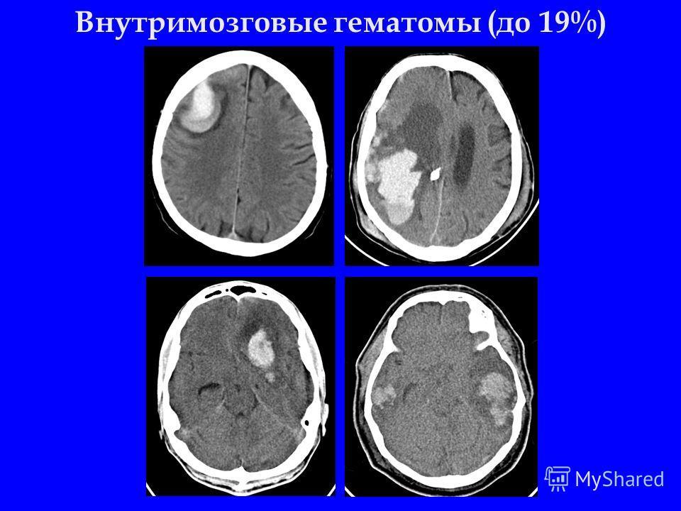 Внутримозговые гематомы (до 19%)