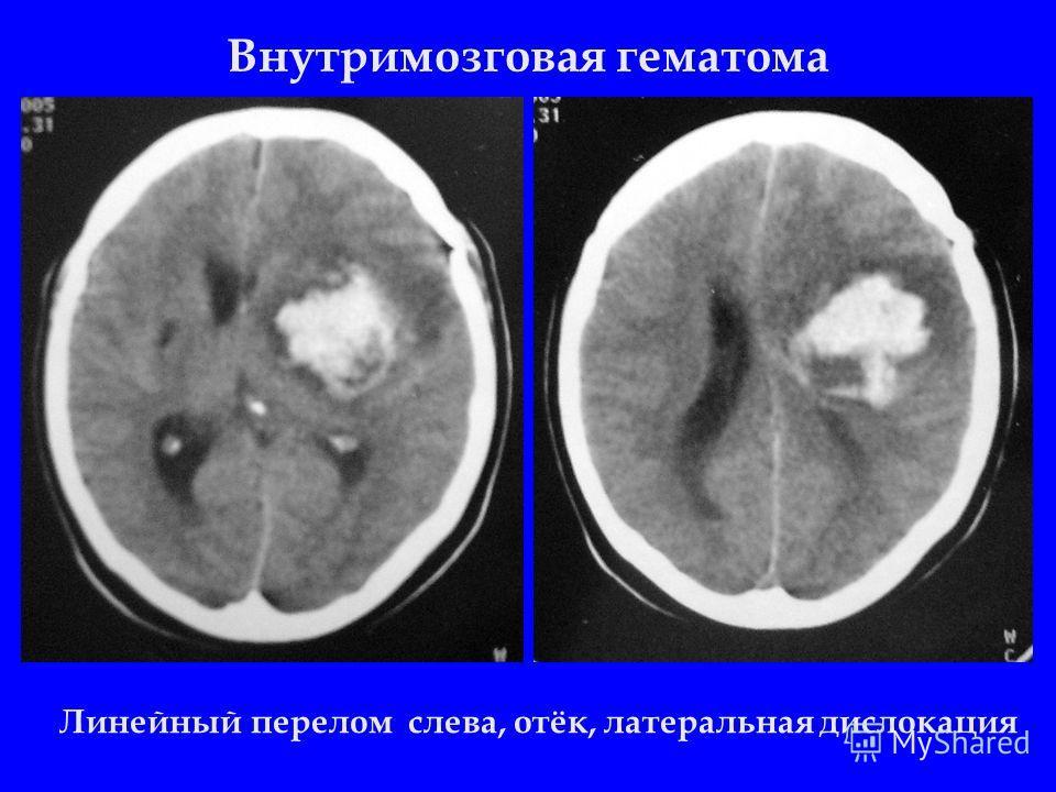 Внутримозговая гематома Линейный перелом слева, отёк, латеральная дислокация