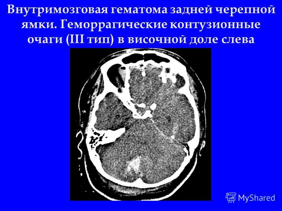 Внутримозговая гематома задней черепной ямки. Геморрагические контузионные очаги (III тип) в височной доле слева