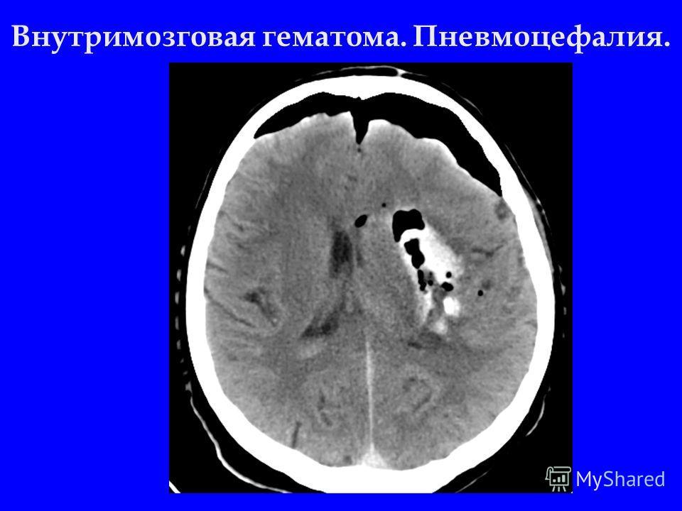 Внутримозговая гематома. Пневмоцефалия.