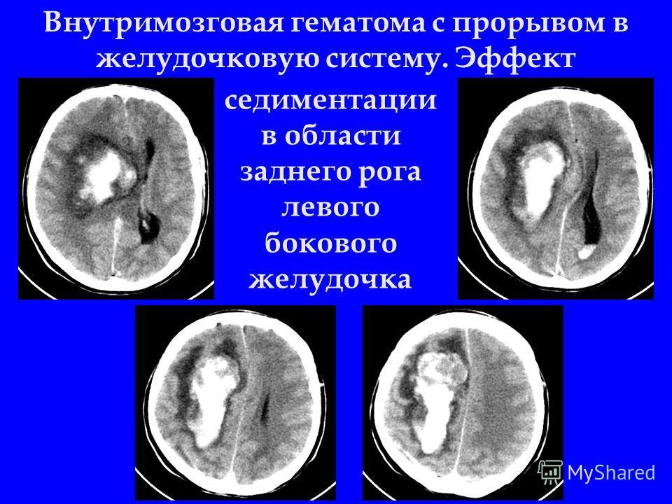 Внутримозговая гематома с прорывом в желудочковую систему. Эффект седиментации в области заднего рога левого бокового желудочка