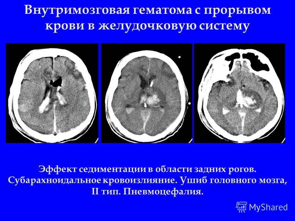 Внутримозговая гематома с прорывом крови в желудочковую систему Эффект седиментации в области задних рогов. Субарахноидальное кровоизлияние. Ушиб головного мозга, II тип. Пневмоцефалия.