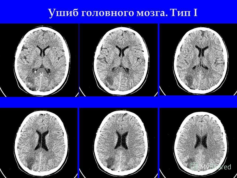 Ушиб головного мозга. Тип I
