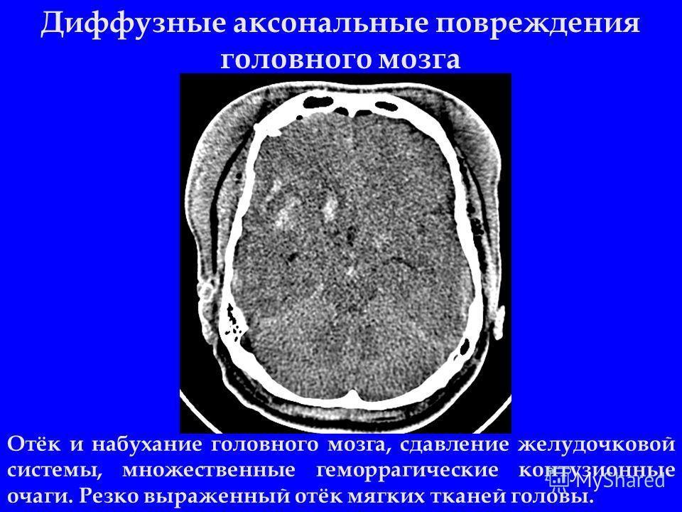 Диффузные аксональные повреждения головного мозга Отёк и набухание головного мозга, сдавление желудочковой системы, множественные геморрагические контузионные очаги. Резко выраженный отёк мягких тканей головы.