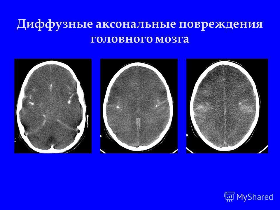 Диффузные аксональные повреждения головного мозга