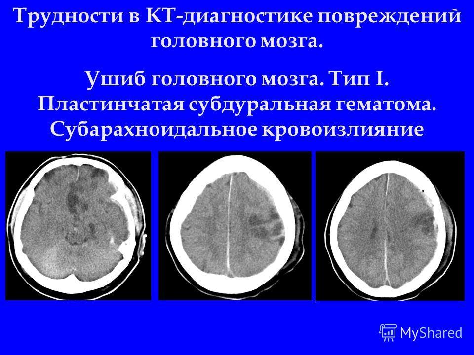 Трудности в КТ-диагностике повреждений головного мозга. Ушиб головного мозга. Тип I. Пластинчатая субдуральная гематома. Субарахноидальное кровоизлияние