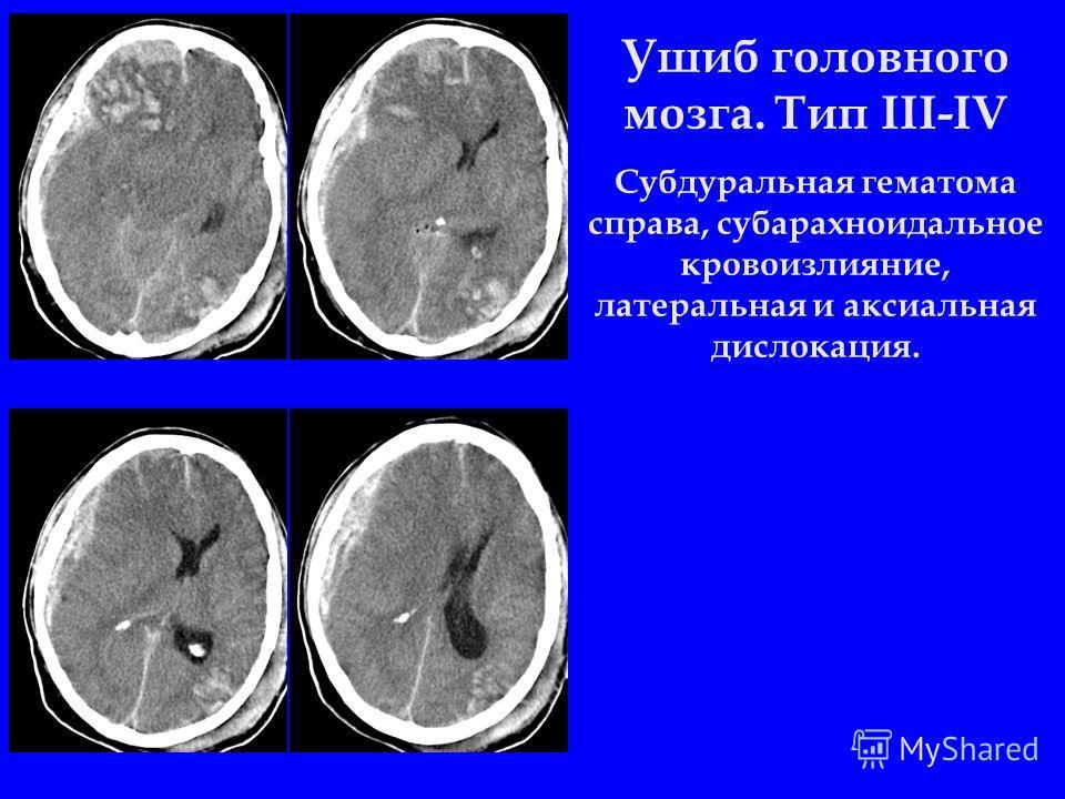 Ушиб головного мозга. Тип III-IV Субдуральная гематома справа, субарахноидальное кровоизлияние, латеральная и аксиальная дислокация.