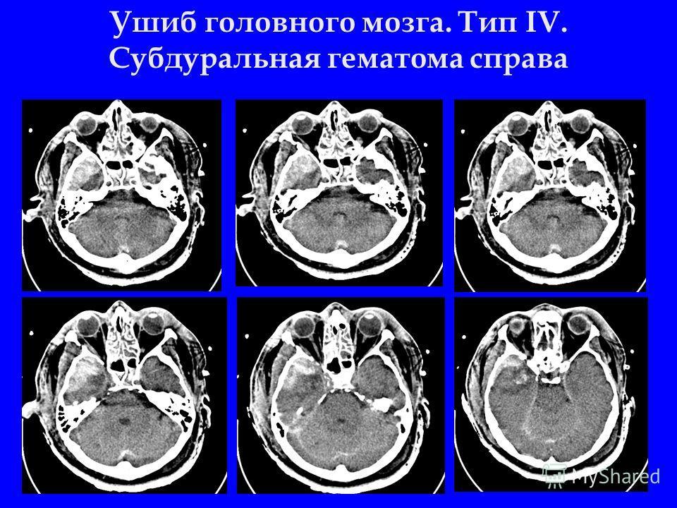 Ушиб головного мозга. Тип IV. Cубдуральная гематома справа