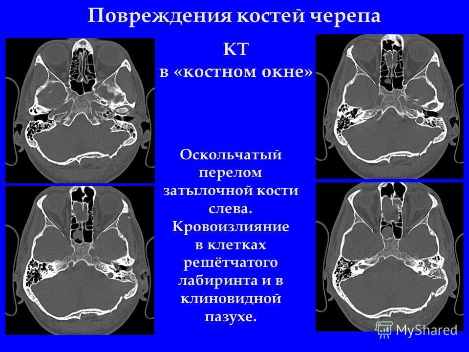 Повреждения костей черепа Оскольчатый перелом затылочной кости слева. Кровоизлияние в клетках решётчатого лабиринта и в клиновидной пазухе. КТ в «костном окне»