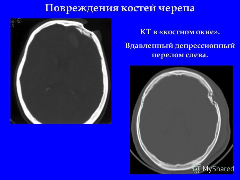 Повреждения костей черепа КТ в «костном окне». Вдавленный депрессионный перелом слева.
