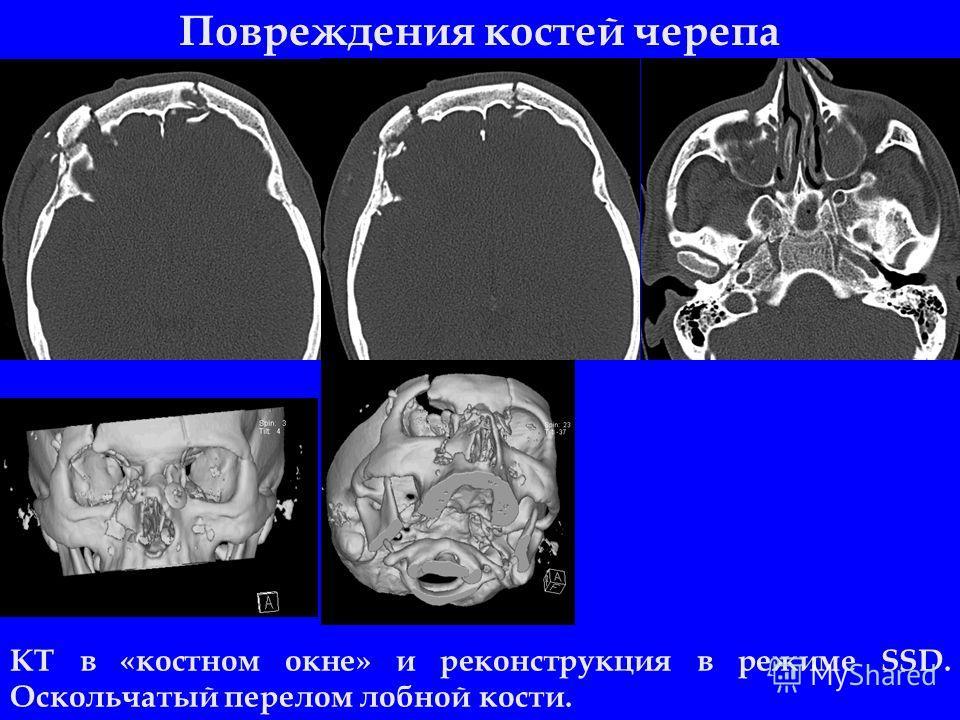 Повреждения костей черепа КТ в «костном окне» и реконструкция в режиме SSD. Оскольчатый перелом лобной кости.