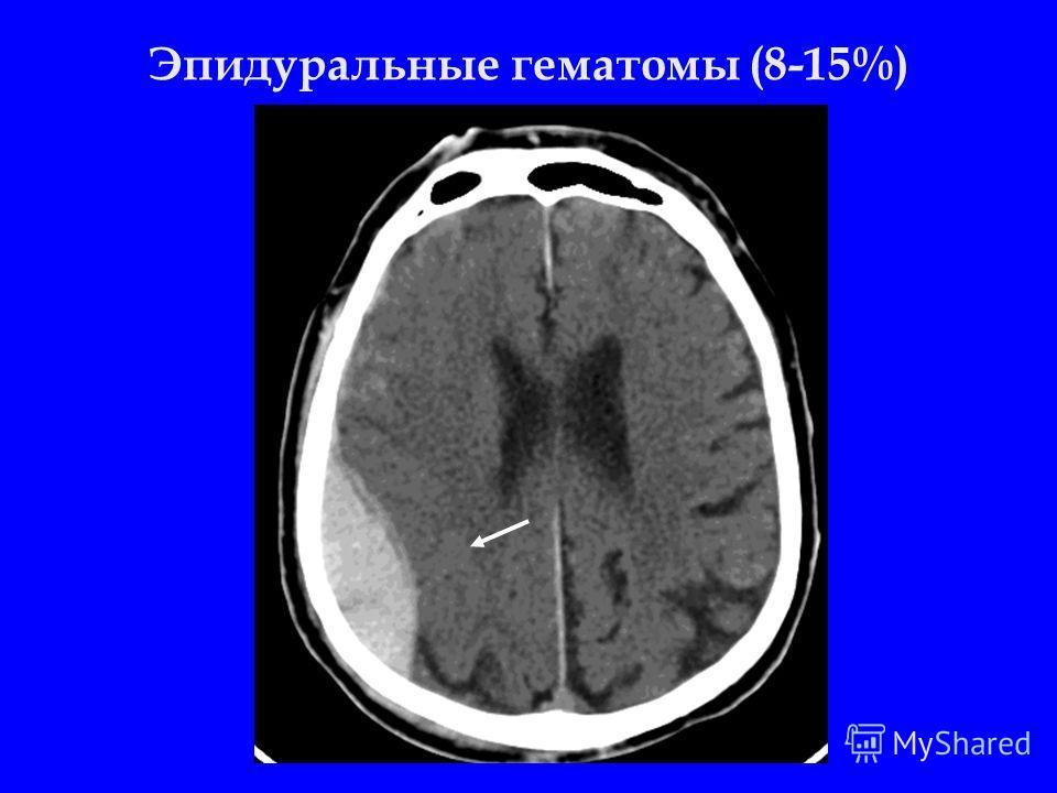 Эпидуральные гематомы (8-15%)