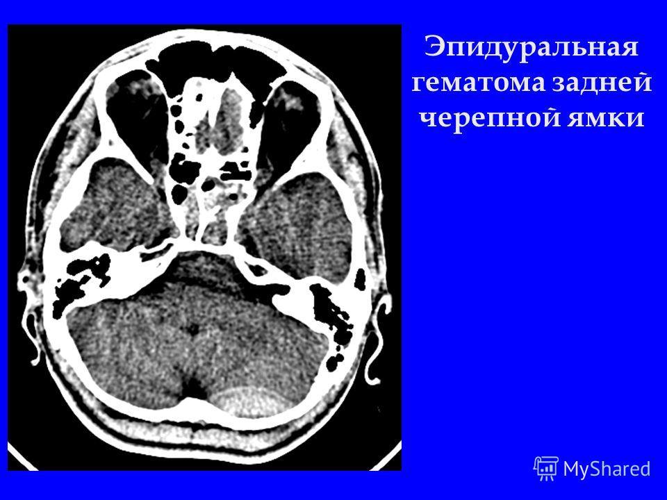 Эпидуральная гематома задней черепной ямки