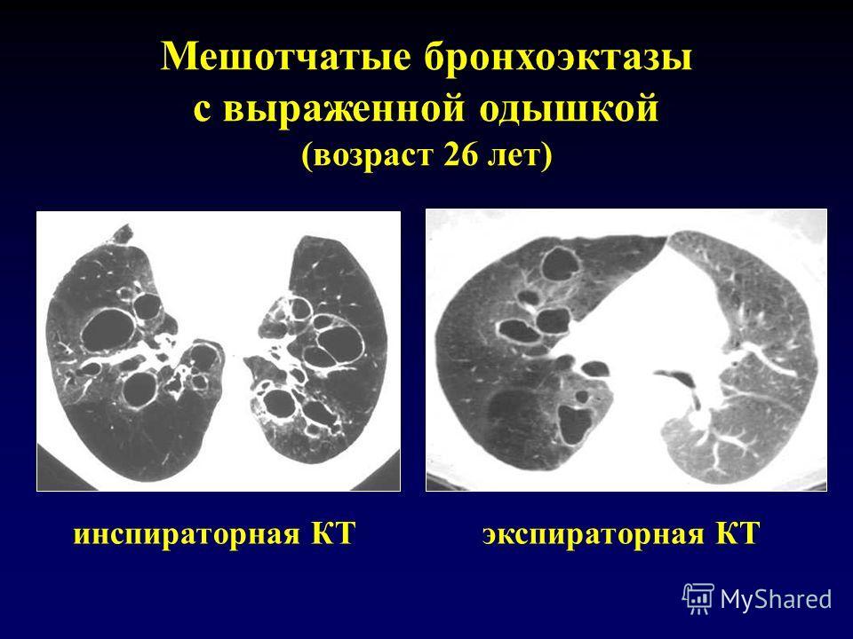 Мешотчатые бронхоэктазы с выраженной одышкой (возраст 26 лет) инспираторная КТэкспираторная КТ