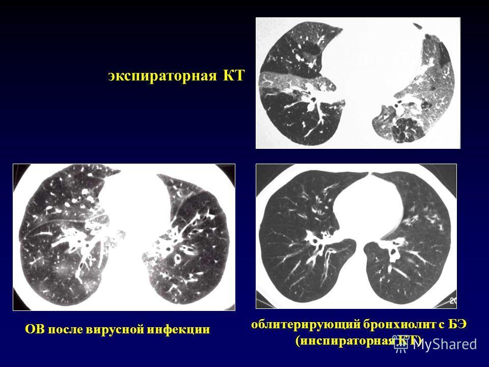 OB после вирусной инфекции облитерирующий бронхиолит с БЭ (инспираторная КТ) экспираторная КТ