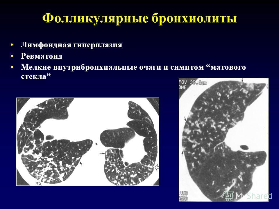 Фолликулярные бронхиолиты Лимфоидная гиперплазия Ревматоид Мелкие внутрибронхиальные очаги и симптом матового стекла