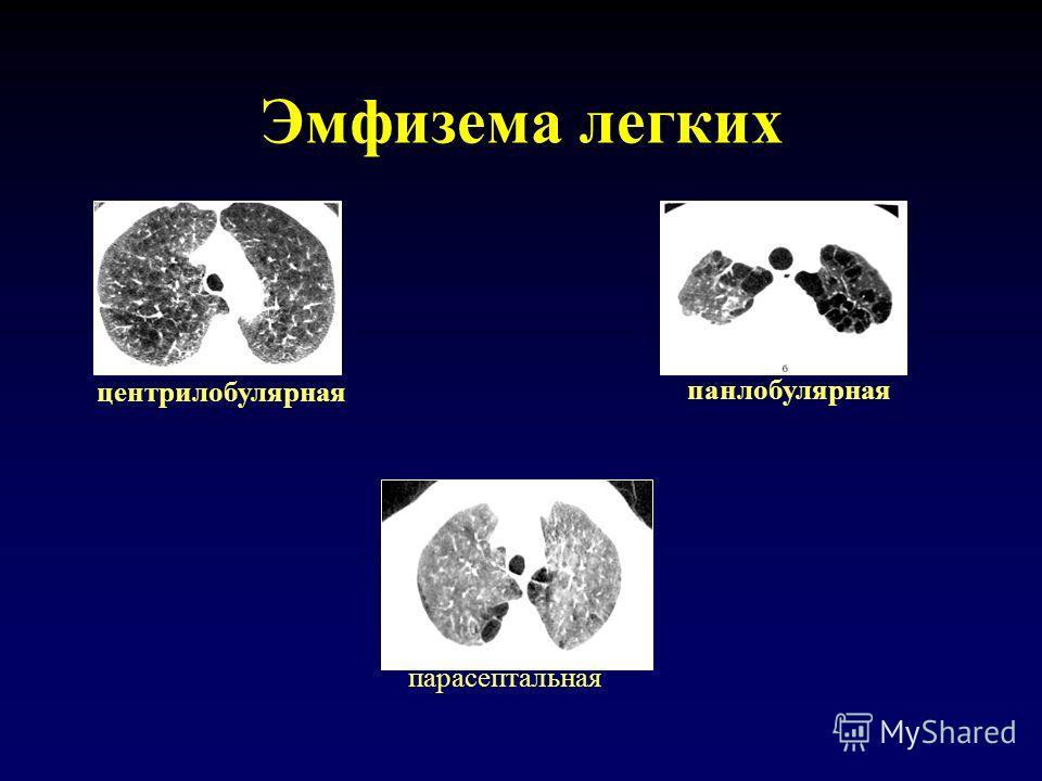 Эмфизема легких центрилобулярная панлобулярная парасептальная