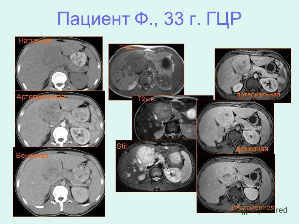Пациент Ф., 33 г. ГЦР T1 в.и. T2 в.и. Stir артериальная венозная отсроченная Нативная Артериальная Венозная