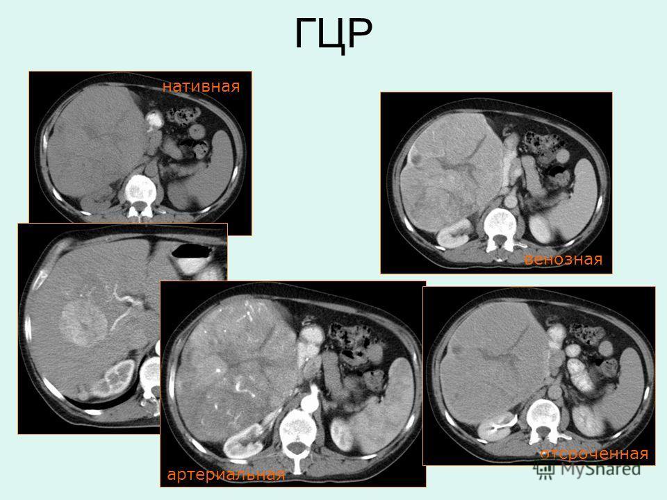 нативная артериальная венозная отсроченная ГЦР
