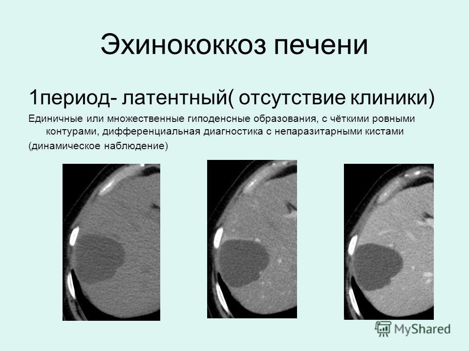 Эхинококкоз печени 1 период- латентный( отсутствие клиники) Единичные или множественные гиподенсные образования, с чёткими ровными контурами, дифференциальная диагностика с непаразитарными кистами (динамическое наблюдение)