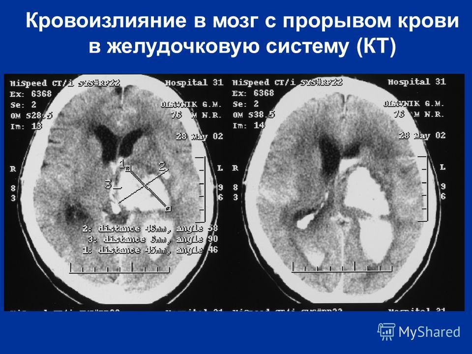 Кровоизлияние в мозг с прорывом крови в желудочковую систему (КТ)