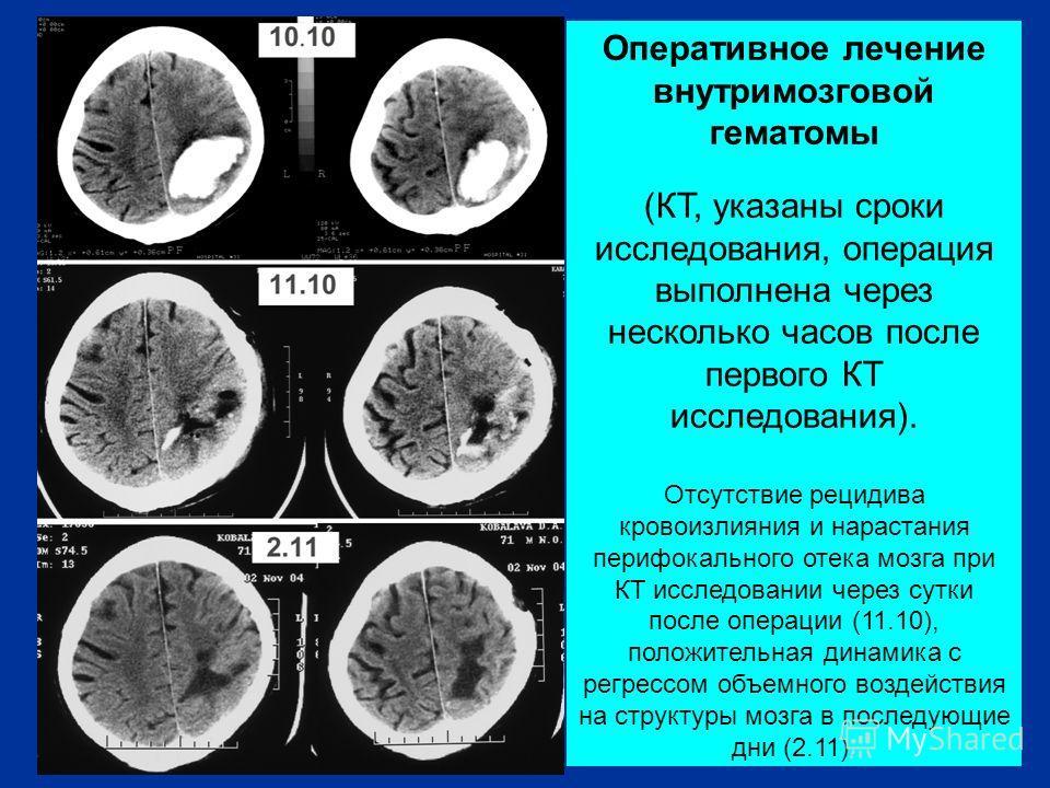 Оперативное лечение внутримозговой гематомы (КТ, указаны сроки исследования, операция выполнена через несколько часов после первого КТ исследования). Отсутствие рецидива кровоизлияния и нарастания перифокального отека мозга при КТ исследовании через
