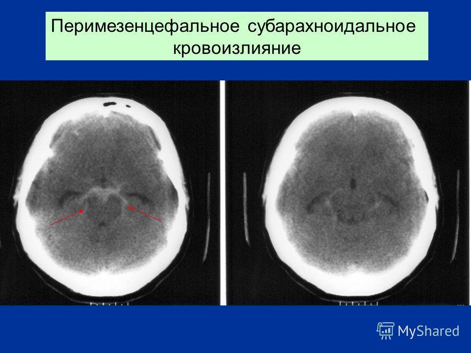 Перимезенцефальное субарахноидальное кровоизлияние