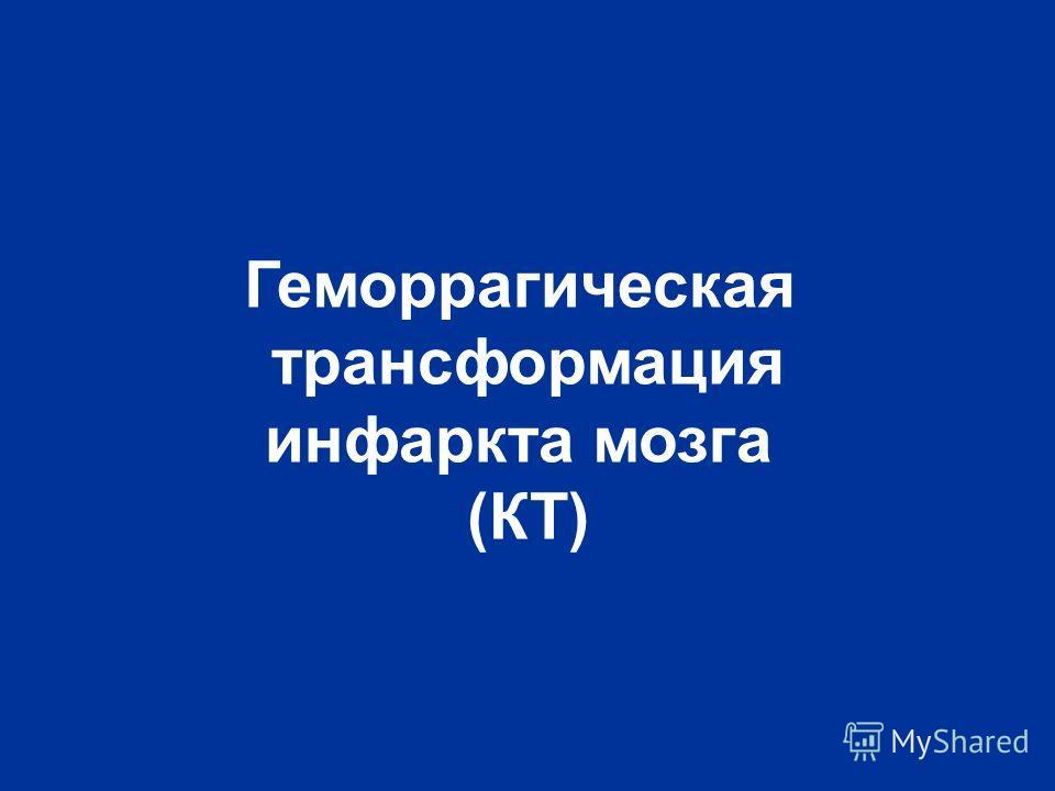 Геморрагическая трансформация инфаркта мозга (КТ)