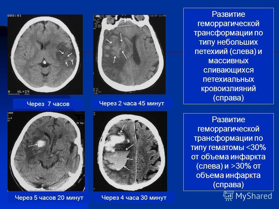 Развитие геморрагической трансформации по типу небольших петехиий (слева) и массивных сливающихся петехиальных кровоизлияний (справа) Развитие геморрагической трансформации по типу гематомы 30% от объема инфаркта (справа) Через 2 часа 45 минут Через