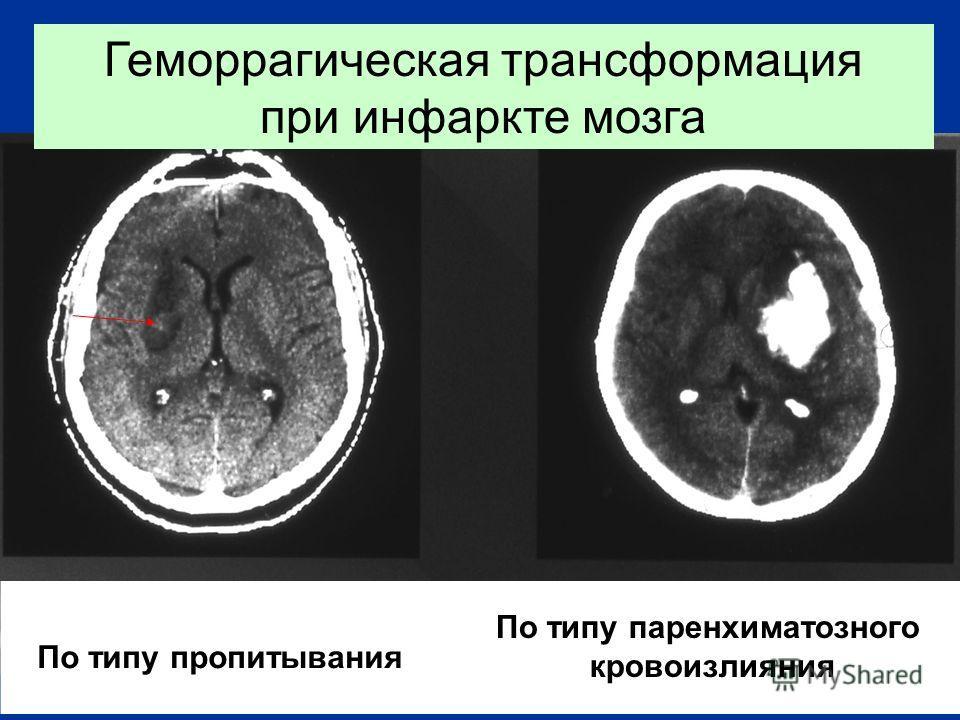 Геморрагическая трансформация при инфаркте мозга По типу пропитывания По типу паренхиматозного кровоизлияния