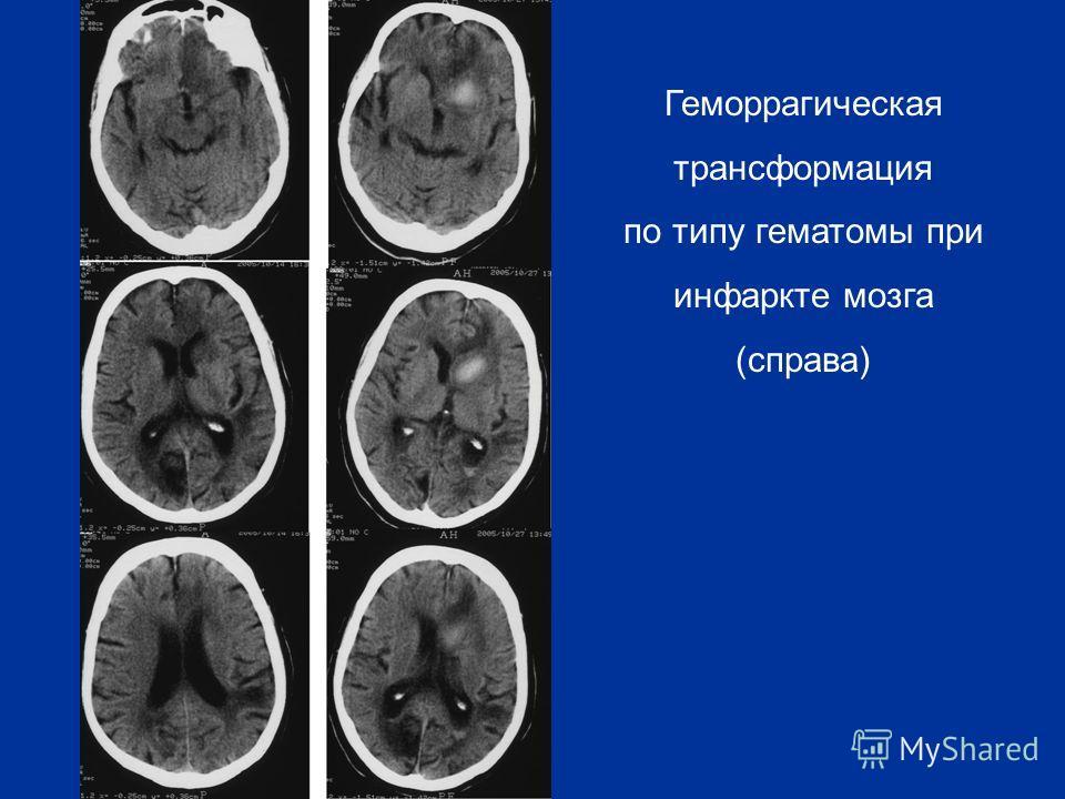 Геморрагическая трансформация по типу гематомы при инфаркте мозга (справа)