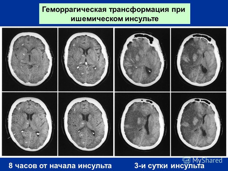 Геморрагическая трансформация при ишемическом инсульте 8 часов от начала инсульта 3-и сутки инсульта