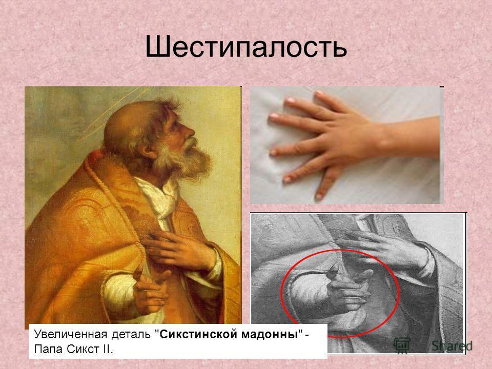 Шестипалость Увеличенная деталь Сикстинской мадонны - Папа Сикст II.
