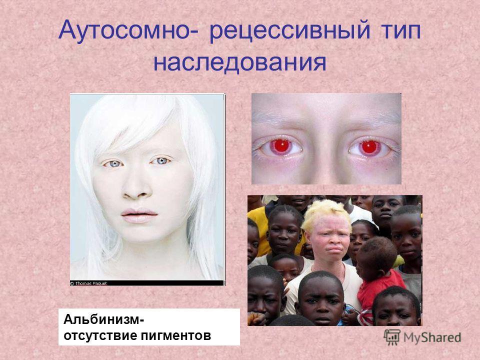 Аутосомно- рецессивный тип наследования Альбинизм- отсутствие пигментов