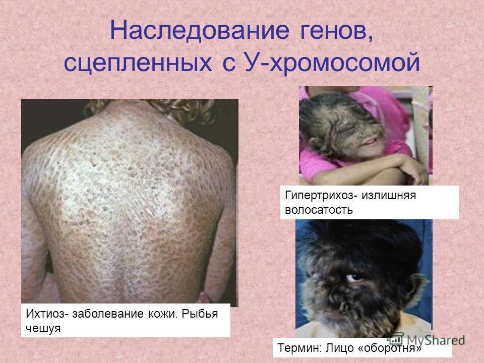 Наследование генов, сцепленных с У-хромосомой Ихтиоз- заболевание кожи. Рыбья чешуя Термин: Лицо «оборотня» Гипертрихоз- излишняя волосатость