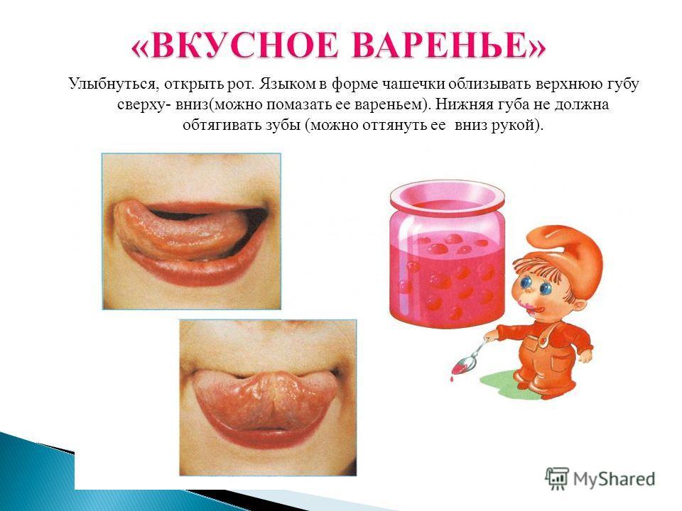 Улыбнуться, открыть рот. Языком в форме чашечки облизывать верхнюю губу сверху- вниз(можно помазать ее вареньем). Нижняя губа не должна обтягивать зубы (можно оттянуть ее вниз рукой).