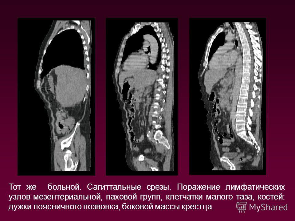 Тот же больной. Сагиттальные срезы. Поражение лимфатических узлов мезентериальной, паховой групп, клетчатки малого таза, костей: дужки поясничного позвонка; боковой массы крестца.