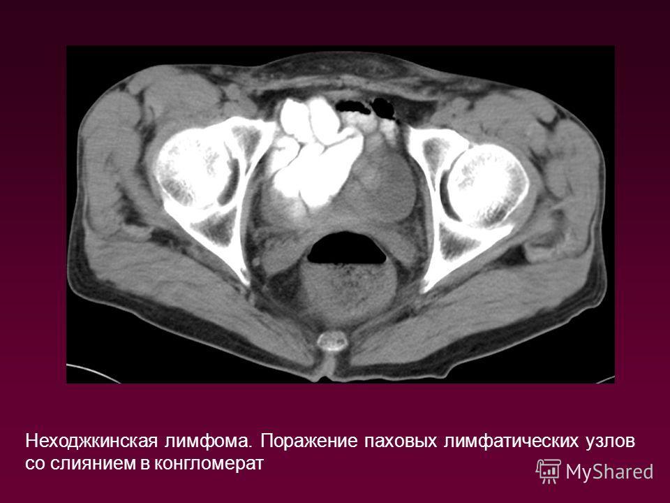 Неходжкинская лимфома. Поражение паховых лимфатических узлов со слиянием в конгломерат
