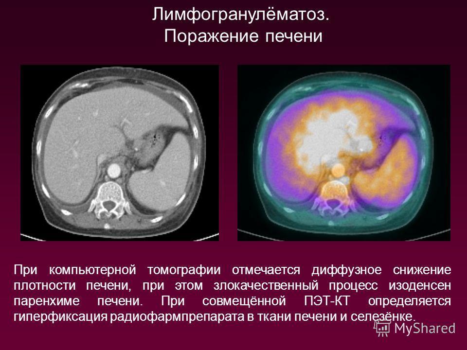 Лимфогранулёматоз. Поражение печени При компьютерной томографии отмечается диффузное снижение плотности печени, при этом злокачественный процесс изоденсен паренхиме печени. При совмещённой ПЭТ-КТ определяется гиперфиксация радиофармпрепарата в ткани