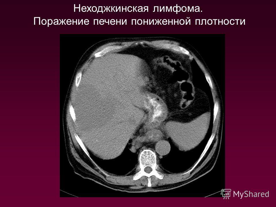 Неходжкинская лимфома. Поражение печени пониженной плотности