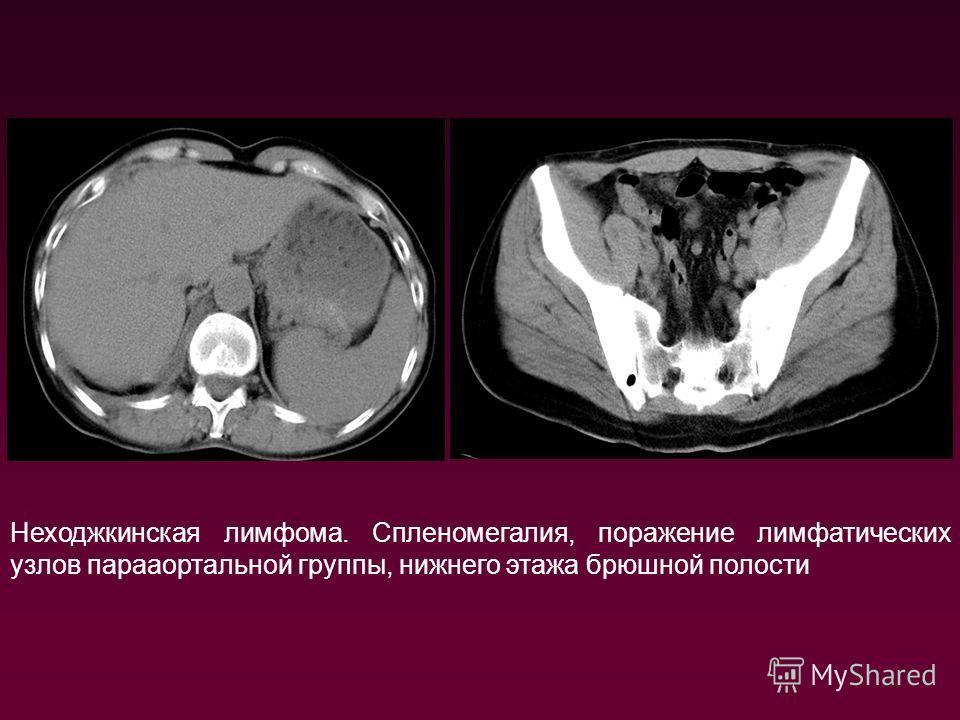 Неходжкинская лимфома. Спленомегалия, поражение лимфатических узлов парааортальной группы, нижнего этажа брюшной полости