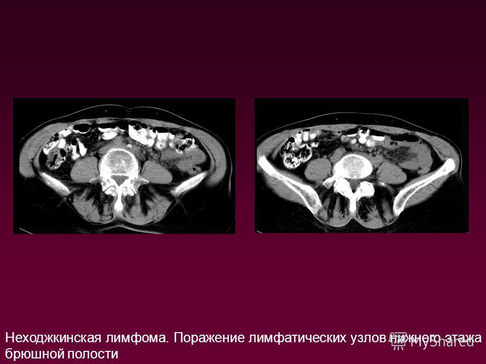 Неходжкинская лимфома. Поражение лимфатических узлов нижнего этажа брюшной полости