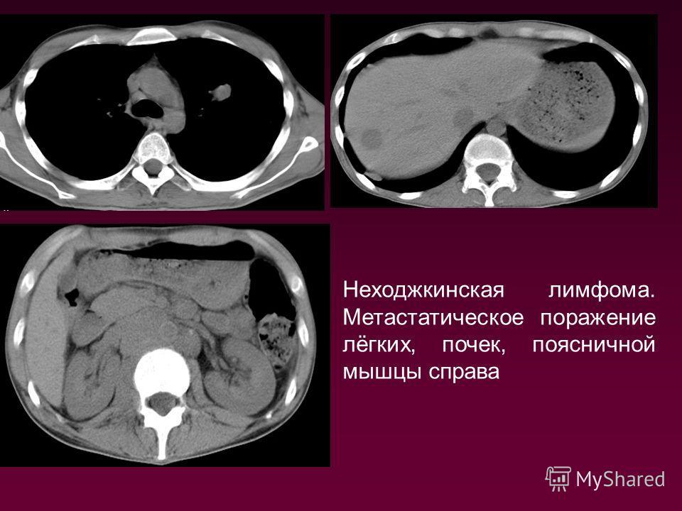 Неходжкинская лимфома. Метастатическое поражение лёгких, почек, поясничной мышцы справа
