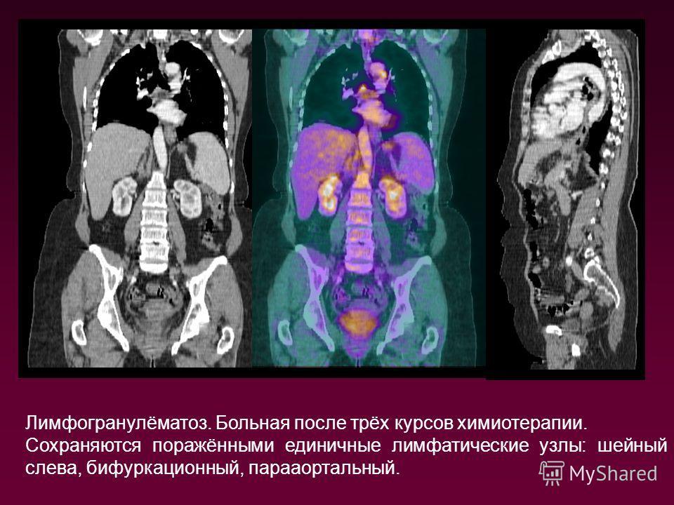 Лимфогранулёматоз. Больная после трёх курсов химиотерапии. Сохраняются поражёнными единичные лимфатические узлы: шейный слева, бифуркационный, парааортальный.