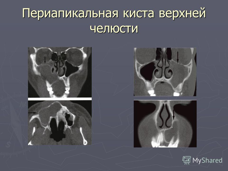 Периапикальная киста верхней челюсти