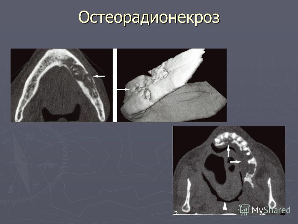 Остеорадионекроз