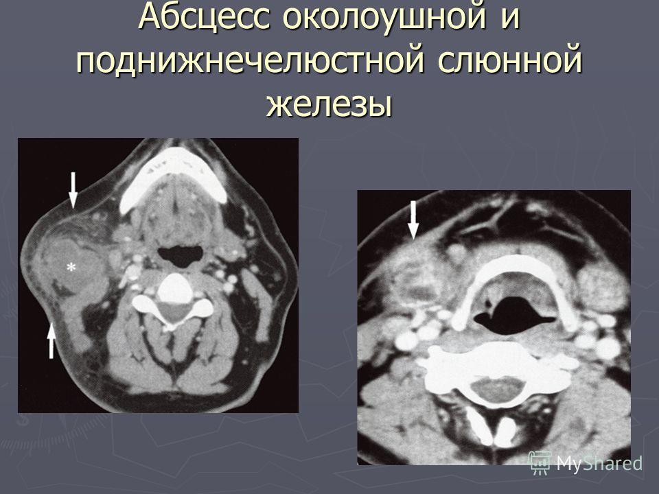 Абсцесс околоушной и поднижнечелюстной слюнной железы