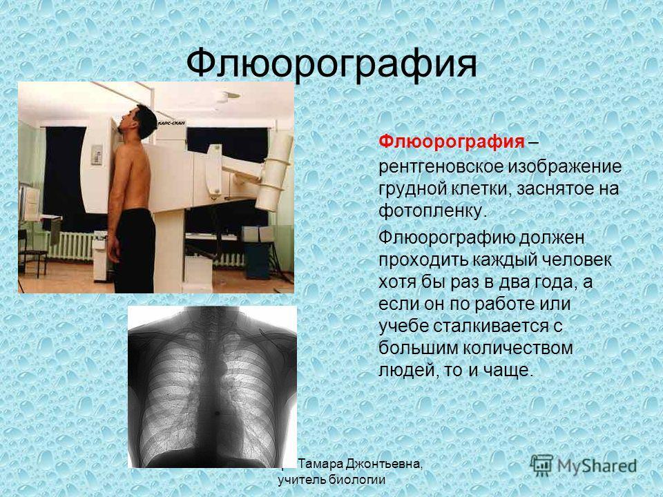 Слюсарь Тамара Джонтьевна, учитель биологии Флюорография Флюорография – рентгеновское изображение грудной клетки, заснятое на фотопленку. Флюорографию должен проходить каждый человек хотя бы раз в два года, а если он по работе или учебе сталкивается