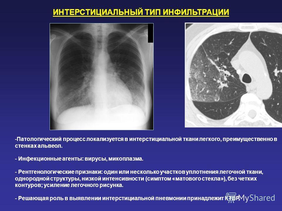 ИНТЕРСТИЦИАЛЬНЫЙ ТИП ИНФИЛЬТРАЦИИ -Патологический процесс локализуется в интерстициальной ткани легкого, преимущественно в стенках альвеол. - Инфекционные агенты: вирусы, микоплазма. - Рентгенологические признаки: один или несколько участков уплотнен