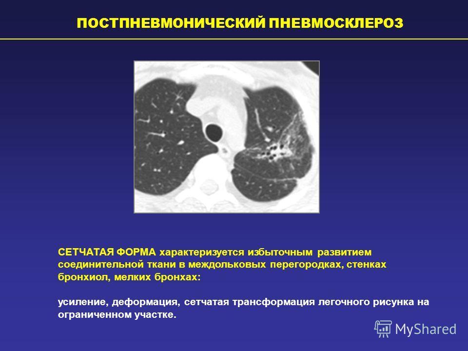 Легочный рисунок деформирован за счет пневмосклероза легких
